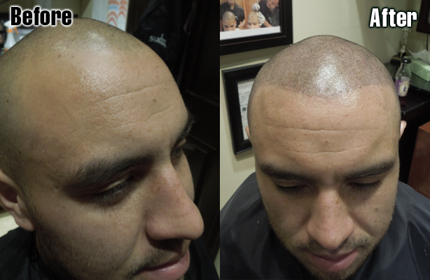 Before Amp After Micro Scalp Pigmentation
