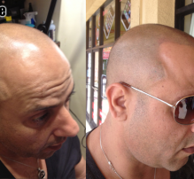 BEFORE & AFTER • MICRO SCALP PIGMENTATION