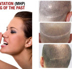 HIDE YOUR SCARS WITH SMP • 100% Natural Look & FEEL!