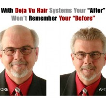 THE TRUTH ABOUT MODERN HAIR SYSTEMS • VIDEO