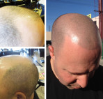 MICRO SCALP HAIR PIGMENTATION • VIDEO